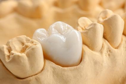 Zahnersatz mit Implantat