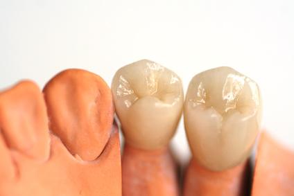 Versorgung des Zahnes mit hochwertigen Keramikkronen