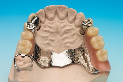 gebiss Zahnersatz